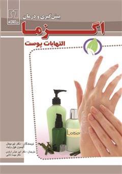 کتاب پیشگیری و درمان اگزما (التهابات پوست)